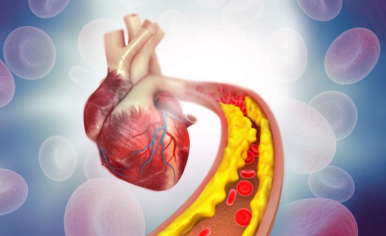 blogcholesterol